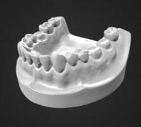 dental mold